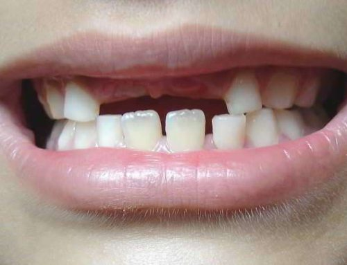 Cand Spalam Dintii de Lapte Copiilor? Raspunde Dentistul